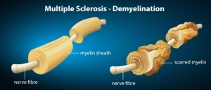 multiple-sclerosis-neurological-disorder-2
